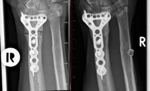 Unterarm Pseudarthrose vor und nach ESWT (1,5 Jahre)
